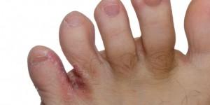 athletes foot fungus