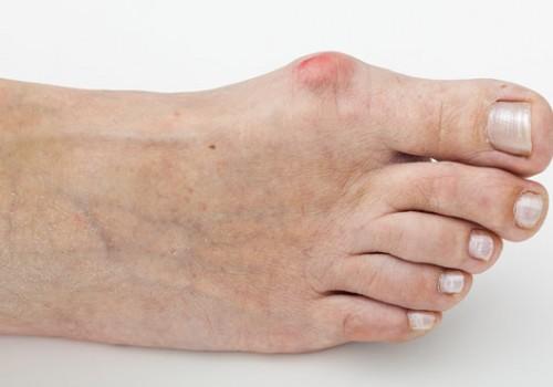Bunion / Hallux Valgus - Dr. Hausen Empire Foot Care
