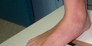 Flat Feet Doctor