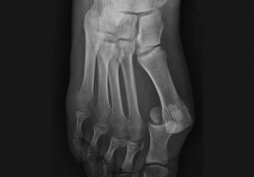 Foot Fracture