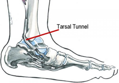 Tarsal Tunnel Syndrome - Dr. Hausen Empire Foot Care